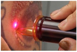 Tattoo-Removal-Laser_2