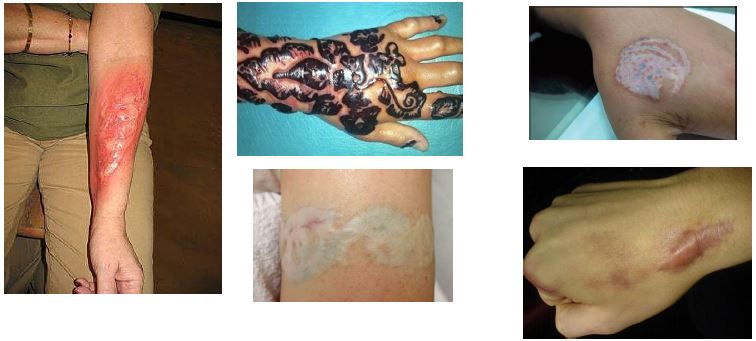 Tattoo-Removal-Laser_3