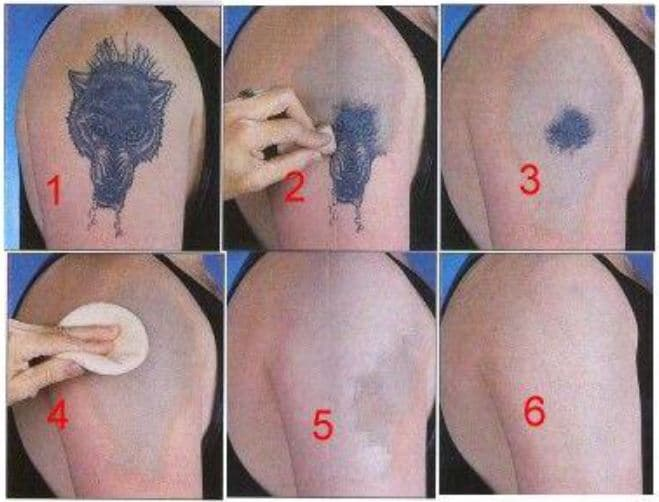 Remove Your Tattoo Naturally | Self Tattoo Removal